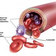 Лейкоз – заболевание, которое нужно лечить сразу!