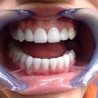 Что надо знать про зубные коронки?