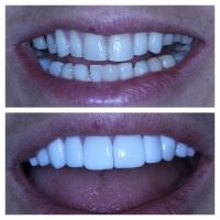 Виниры на зубы Киев стоматология Люми-Дент