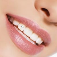 Основные виды декоративных украшений для зубов. Скайсы