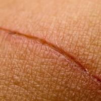 Как предотвратить образование рубцов на коже