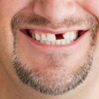 При потери зубов риск болезней сердца возрастает