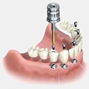 Выбираем имплантат: основные критерии