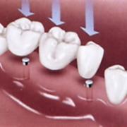 Современная имплантация зубов и установка виниров