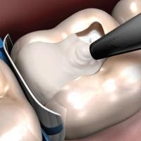 Лечение и пломбирование зубов – залог здоровья.
