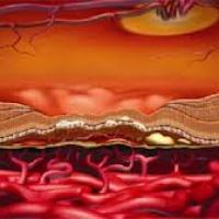 Эпиретинальный фиброз: причины возникновения, симптомы и лечение