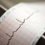 В Омске разработали беспроводной кардиограф под Android