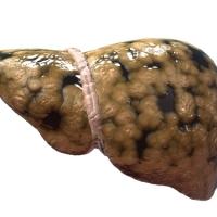 Гепатоз требует коррекции диеты