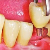 Имплантация или реставрация зубов: принимайте решение с профессионалами