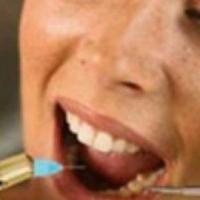 Преимущества услуг персональных частных стоматологических кабинетов