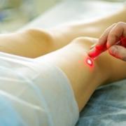 Лечение варикозной болезни лазером