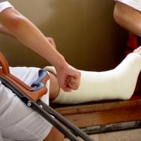 Как себя вести, если сломал ногу?