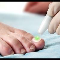 Лазерное лечение грибка ногтей: суть, особенности и преимущества терапии