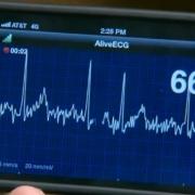 Омские разработчики создали беспроводной кардиомонитор