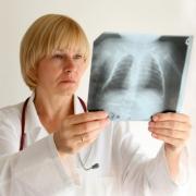 Туберкулез пошел на спад