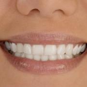 Металлокерамические зубные протезы