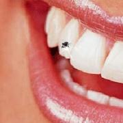 Как вернуть улыбке белизну?