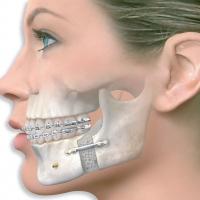 Челюстно-лицевая хирургия и её особенности