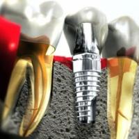 Прогрессивный метод восстановления зубов
