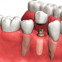Какие зубные импланты выбрать