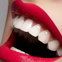 Что надо знать про отбеливание зубов