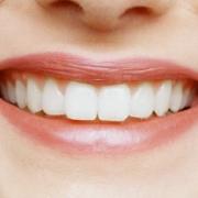 Восстановление зубов с помощью виниров