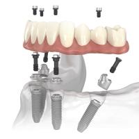Современная технология имплантация зубов