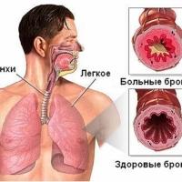 Причины возникновения бронхита, лечение