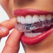 Прозрачные каппы сделают вашу улыбку идеальной