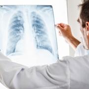 Рак кишечника: лечим эффективно