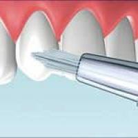 3d ручка и карандаш для отбеливания зубов