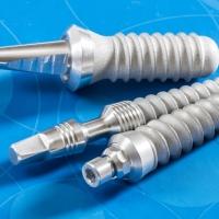 Процесс установки импланта зуба