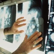 Реально ли вылечить рак?