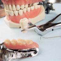 Достоинства имплантации зубов