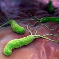 Бульбит желудка: причины, виды и симптомы, лечение