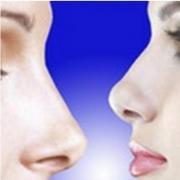 Ринопластика и удаление горбинки носа