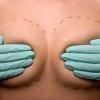 Современный подход к операции по увеличению груди