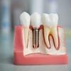 Эффективная и быстрая имплантация зубов