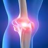 Какие препараты восстанавливают функции суставов и ткани хрящей?