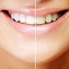 Очищение и лечение зубов без риска