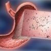 Причины и симптомы поверхностного гастрита