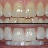 Отбеливание зубов в стоматологиях Москвы – Виды - Противопоказания к процедуре