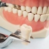 Протезирование зубов: использование вкладок, виниров и съемных протезов