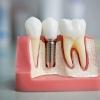 Клиника «Неватекс» - недорогие импланты зубов для каждого