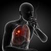 Как диагностируется рак легких?