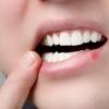 Профессиональное протезирование зубов