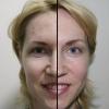 Ботокс на лице