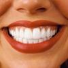 Как отбеливание зубов улучшает нашу жизнь?
