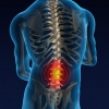 Лечение межпозвоночной грыжи в Израиле - Ортокин терапия