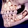 Сроки и схема роста молочных зубов у деток